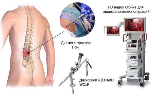 Эндоскоп для микродискэктомии
