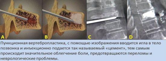 Пункционная вертебропластика