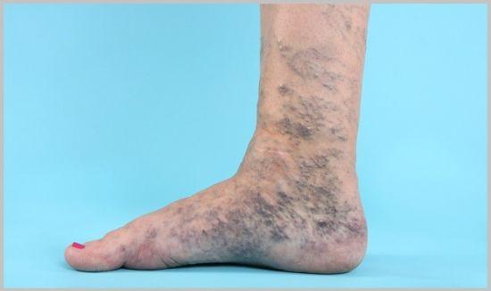 синяя нога