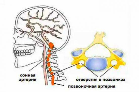 Спазм позвоночной артерии