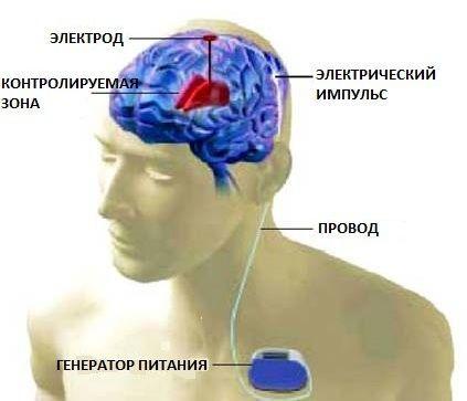 Суть операции при Паркинсонизме