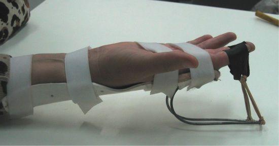 Физиолечение суставов