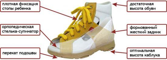 Характеристика обуви при вальгусе