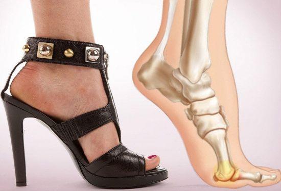 Нога в неудобной обуви