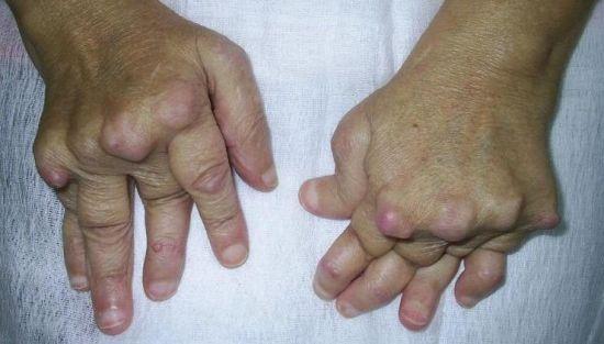 Уколы при артрите коленного сустава
