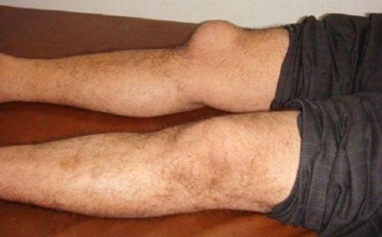 Шишка на колене