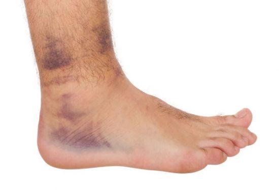 нога с синяками