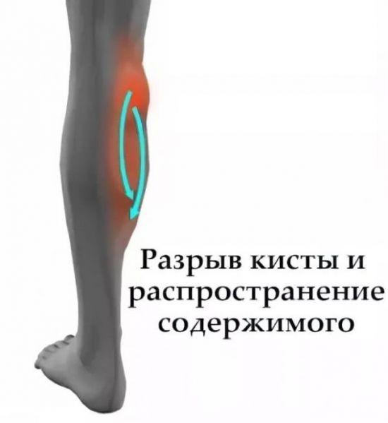 Разрыв кисты под ногой