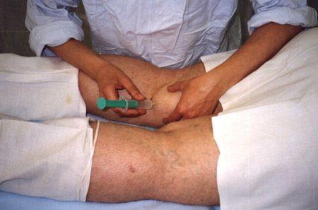 Пункция коленного сустава