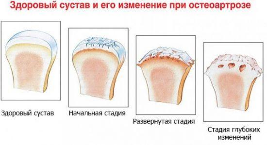 Изменение сустава при остеоартрозе