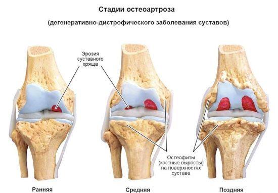 Стадии остеоартроза