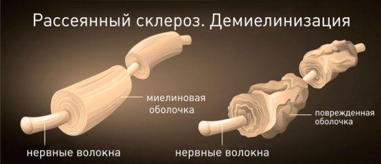 Разрушение нервных волокон