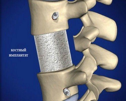 Костный имплант в позвоночнике