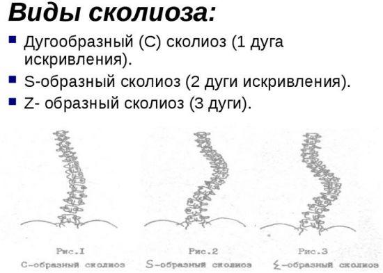 Z-образный сколиоз