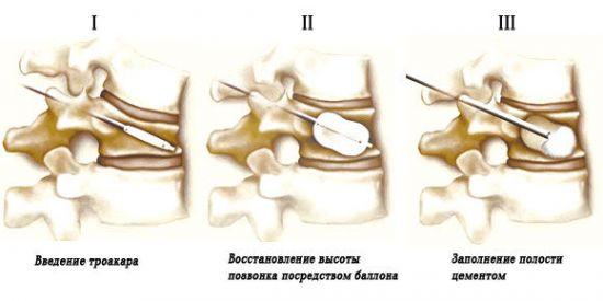 Кифопластика