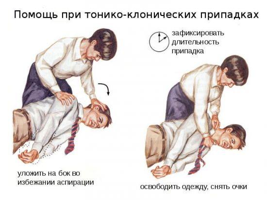 Помощь при тонико-клонических припадках