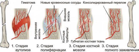 Заживление кровеносных сосудов при переломе