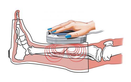 Магнитотерпапия перелома кости