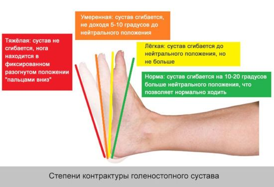 Степени контрактуры голеностопного сустава