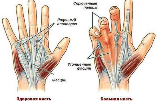 Народные средства для лечения сухожилия на ладони thumbnail
