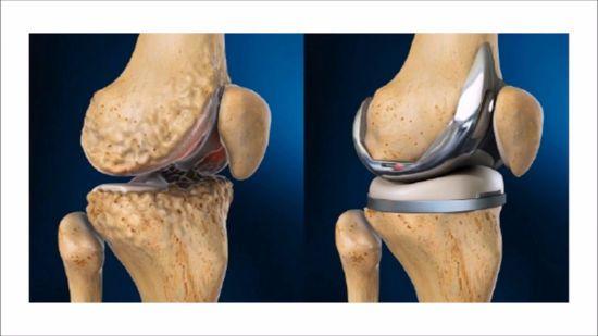 Эндопротез колена