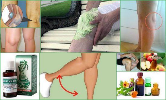 Народные средства для лечения колена