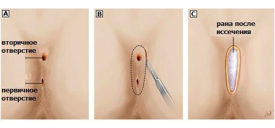 Отверстия после операции на копчике
