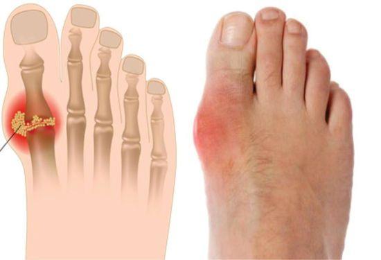 Соли на большом пальце ноги