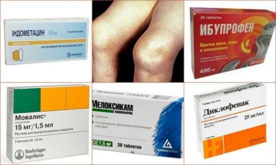 Противовоспалительные препараты