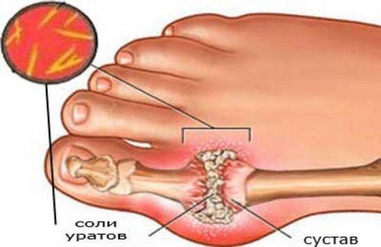 Отложение солей на суставе пальца