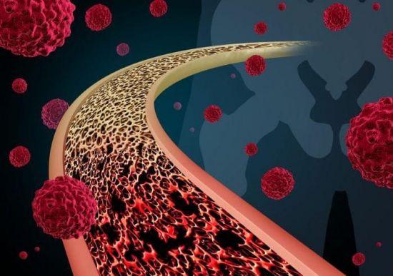 Раковые клетки в крови