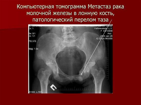 Метастазы в костях таза