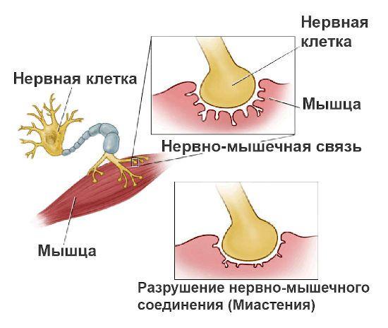 Нарушение нервно-мышечных связей