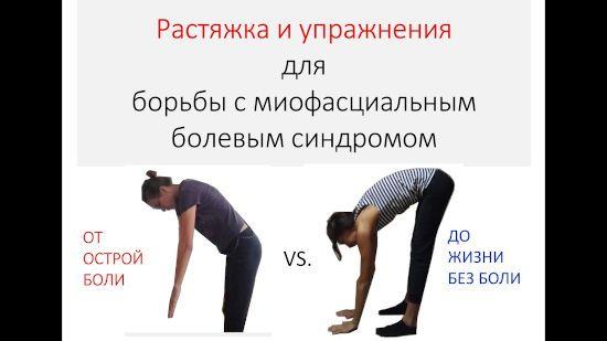Упражнения при миофасциальном синдроме