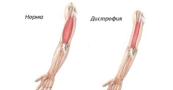 Норма и дистрофия мышцы