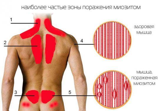 Зоны наибольшего поражения миозитом