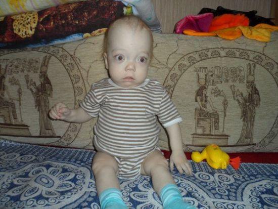 Ребенок с крупным черепом и выпученными глазами