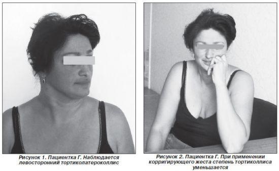 Сегментарная мышечная дистония
