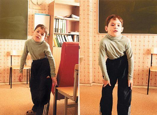 Мальчик с мышечной дистонией