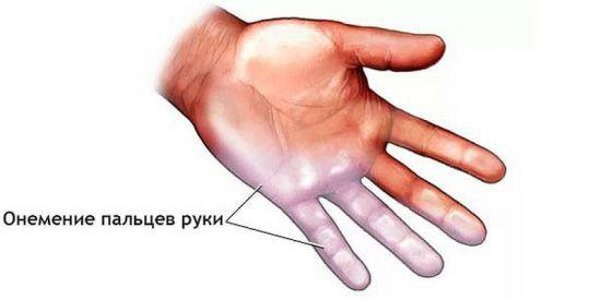 Онемение мизинца и безымянного пальца