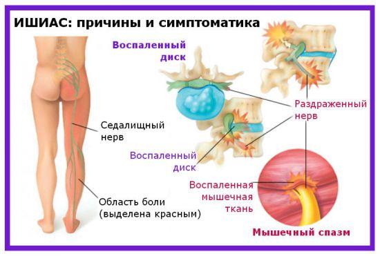 Причины и симптомы ишиаса
