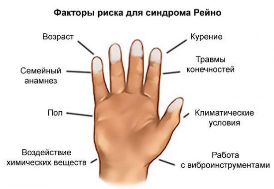 Признаки болезни Рейно