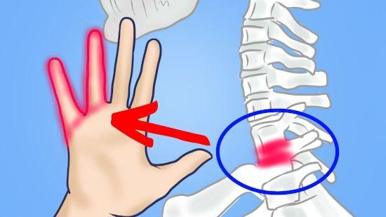 Онемение безымянного пальца и мизинца