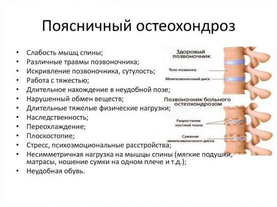 Признаки поясничного остеохондроза