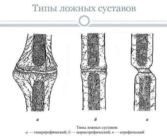 Типы ложных суставов