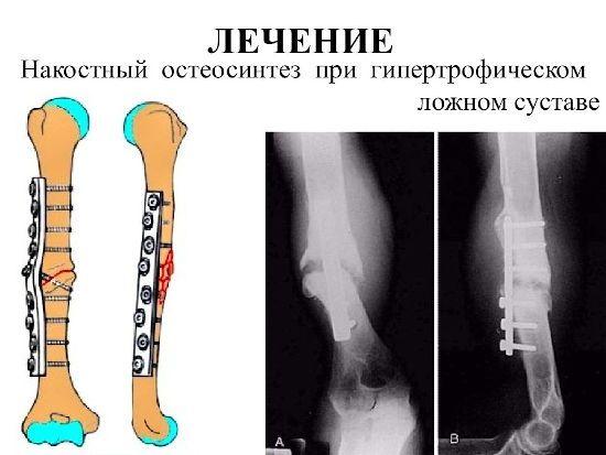 Остеосинтез кости