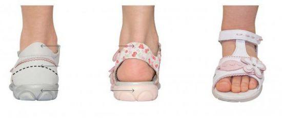 Нога в сандалии