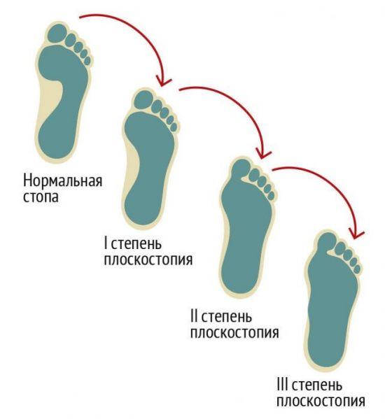 Степени плоскостопия по отпечатку стопы