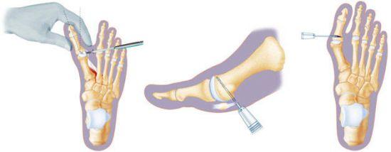 Удаление косточки на ноге