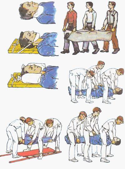 Перевозка пострадавшего с переломом шеи